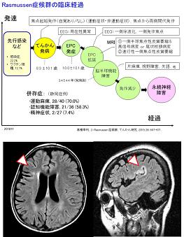 ラスムッセン症候群の臨床経過